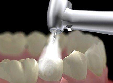 установка пломбы с помощью цифровой диагностики зубов