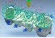 Моделирование коронки зуба с помощью цифровой диагностики в стоматологии Багита в Черкассах