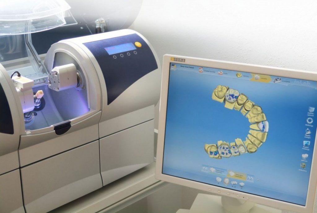 аппарат для цифровой диагностики зубов фото