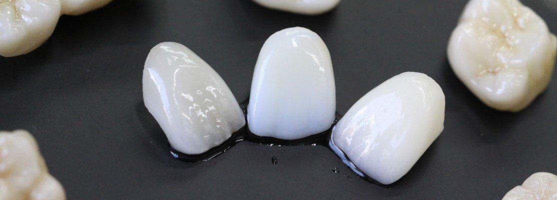 Коронки для зубов изготовлены с помощью цифровой стоматологии в Черкассах