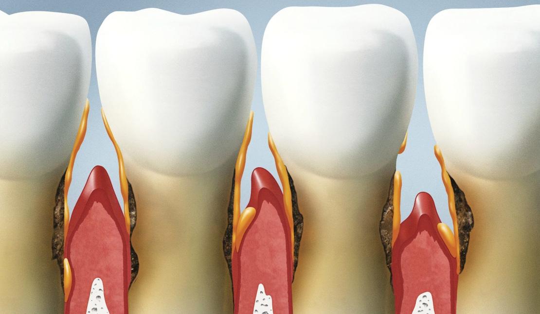 пародонтит на зубах и его лечение в стоматологии Черкассі