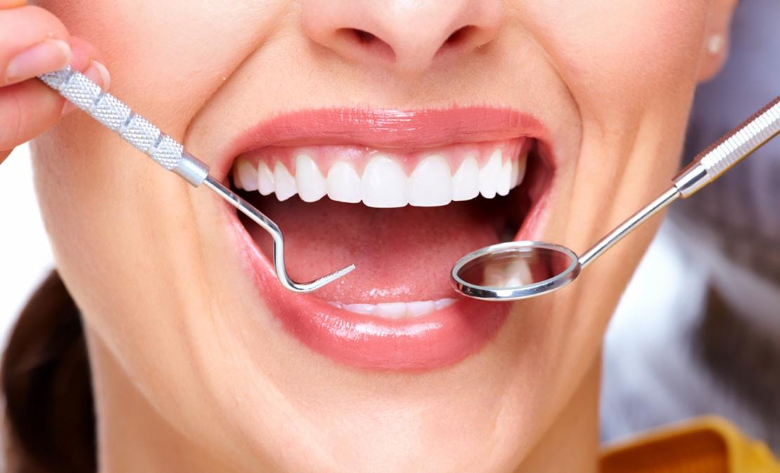фото зубов и стоматологического инструмента для лечения пародонтита