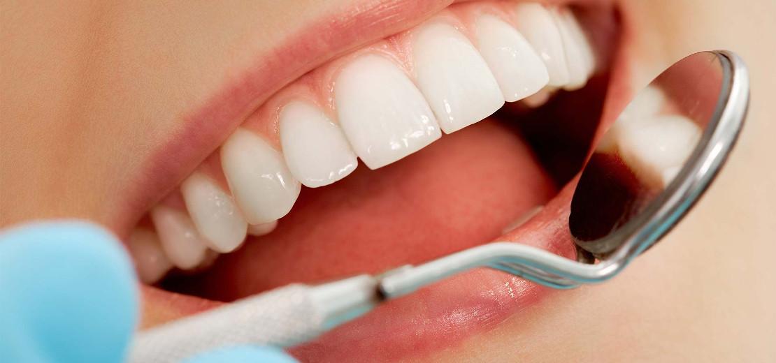 профессиональная чистка зубов у стоматолога гигиениста в стоматологии Багита в Черкассах