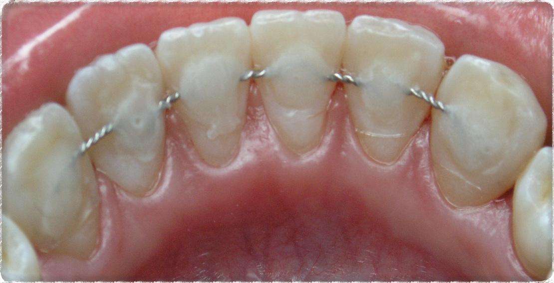 шинирование зубов в стоматологической клинике Багита
