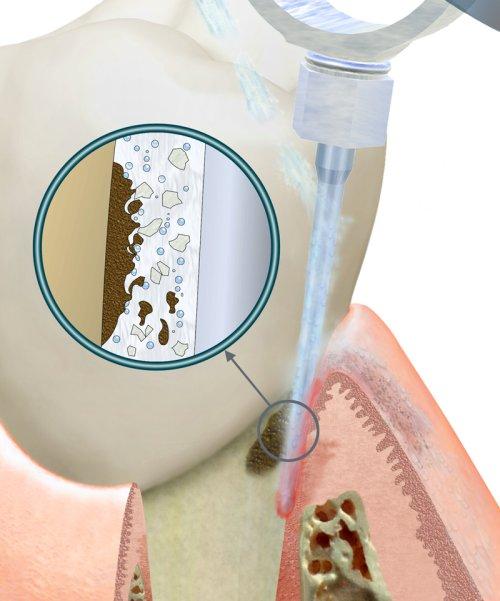 процедура вектор терапии для профилактики и лечения заболеваний пародонта