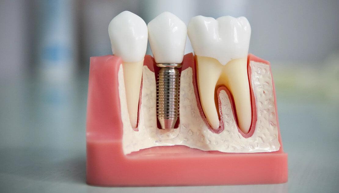 на фото макет импланта вживленного в челюсть  стоматологом хирургом