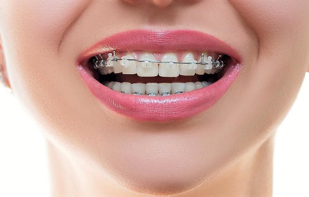 фото брекеты для исправления прикуса установленные в стоматологической клинике Багита в Черкассах