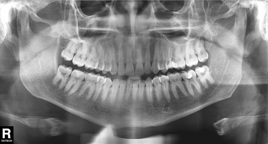 рентген зубного ряда для исправления прикуса у ортодонта