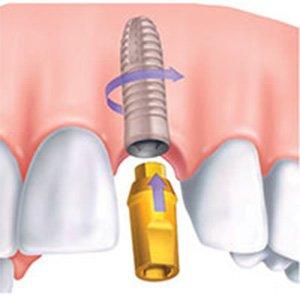 схема установки импланта в стоматологии в Черкассах