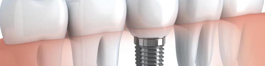 имплантация зубов в стоматологической клинике