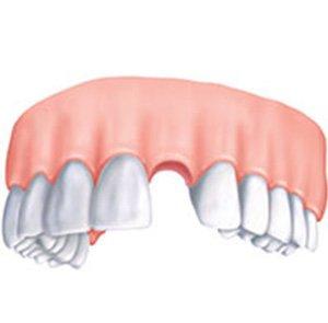 отсутствие зуба в челюсти перед имплантацией