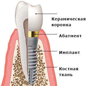 строение импланта зуба в Черкассах в стоматологической клинике
