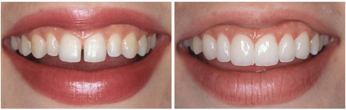 на фото исправление прикуса после лечения у ортодонта в стоматологии Багита