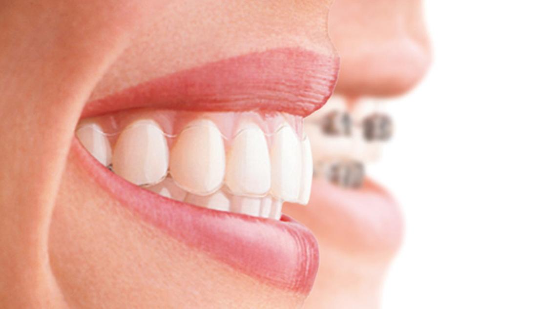 на фото улыбка пациентки после исправления прикуса брекетами у ортодонта
