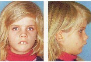 на фото исправление неправильного прикуса у ребенка в стоматологии Багита ортодонт в Черкассах