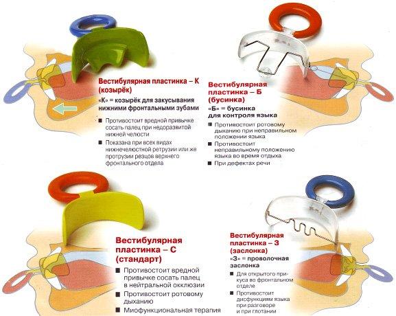 пластинки для исправления прикуса у ребенка ортодонт в Черкассах