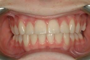 после исправления прикуса в клинике Багита ортодонт в Черкассах