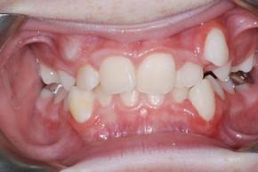 на фото неправильный прикус до лечения у ортодонта в стоматологии Багита