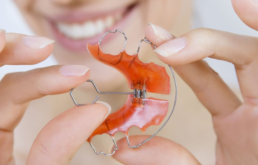 пластина для выравнивания прикуса в стоматологии ортодонт в Черкассах