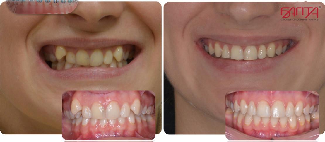 на фото исправление неправильного прикуса до и после лечения у ортодонта в стоматологии Багита