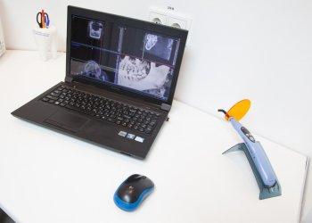 стоматологическое оборудование ортодонта для компьютерной диагностики зубов
