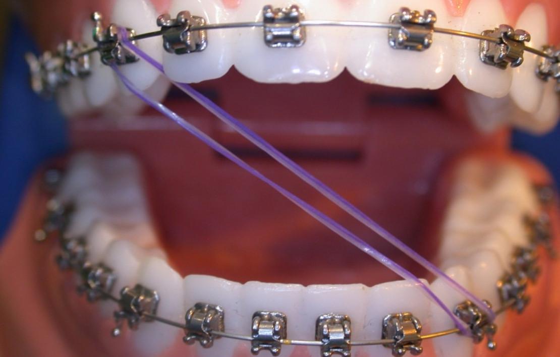 ортодонтический эластик для брекетов фото