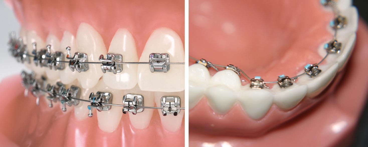 на фото брекет система установленная у ортодонта для исправления прикуса