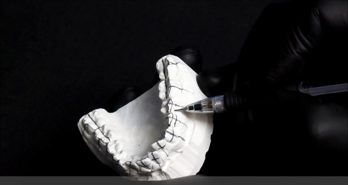 установка брекетов непрямым способом у ортодонта с помощью гипсовой модели челюсти