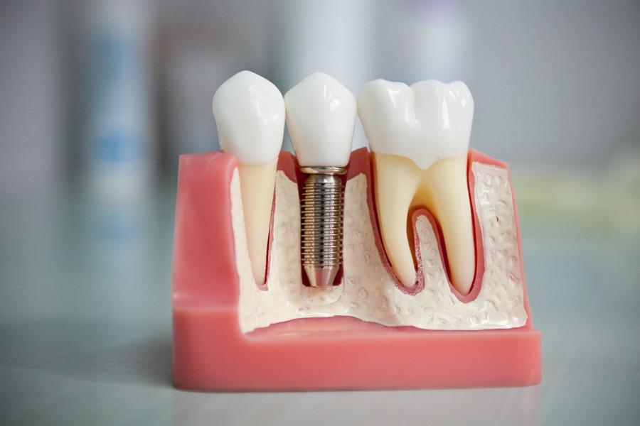 модель установки импланта зуба в стоматологической клинике Багита