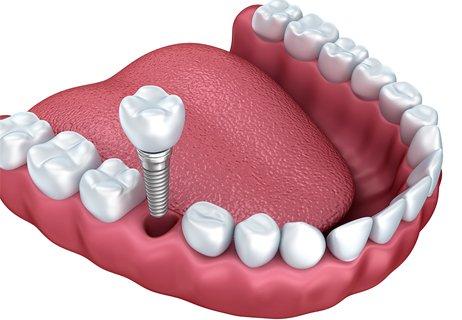установка импланта зуба в стоматологической клинике