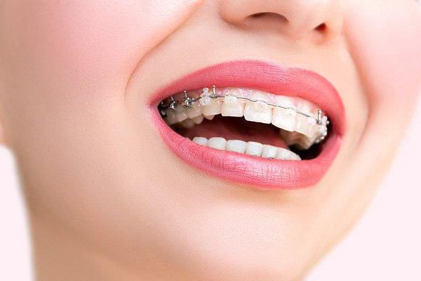 фото брекет системы на зубах в стоматологической клинике Багита