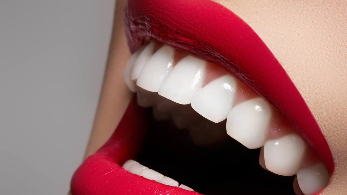 на фото улыбка после гигиены полости рта в домашних условиях