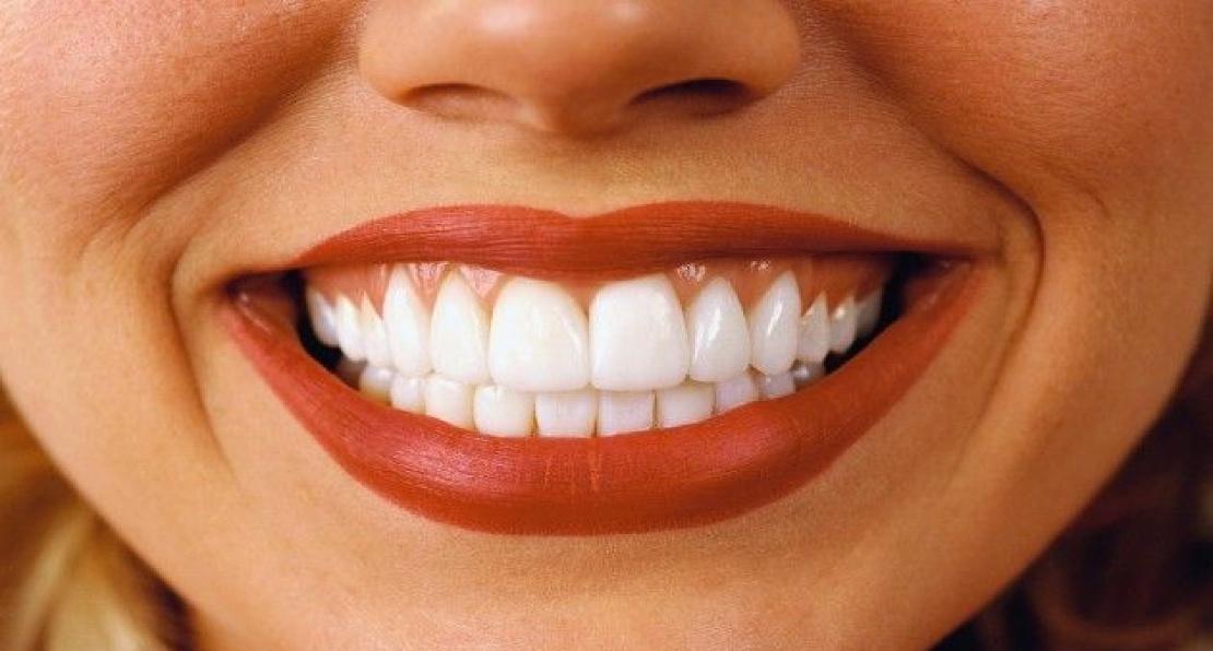 фото женской улыбки после лечения зубов