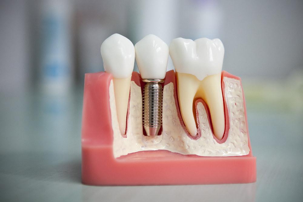 искусственный имплант образец в стоматологии