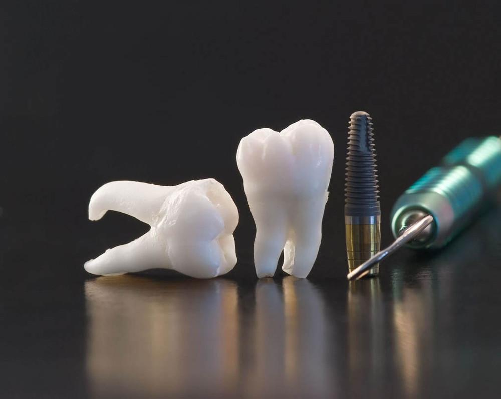 имплантация зубов в Черкассах