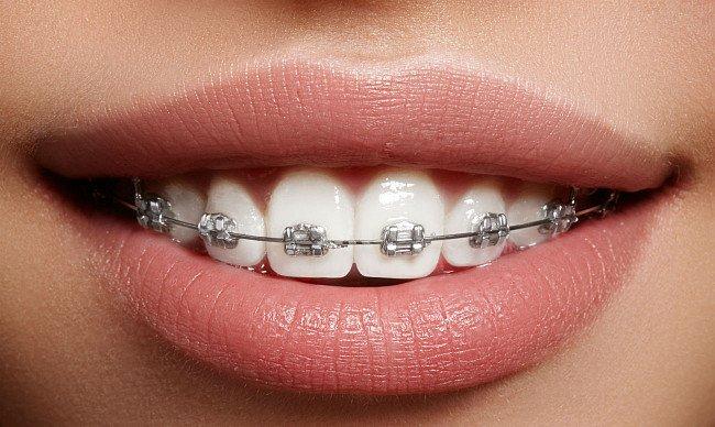 установка брекетов в стоматологии Черкассы фото