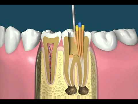 фото лечения зубов в стоматологической клинике Багита