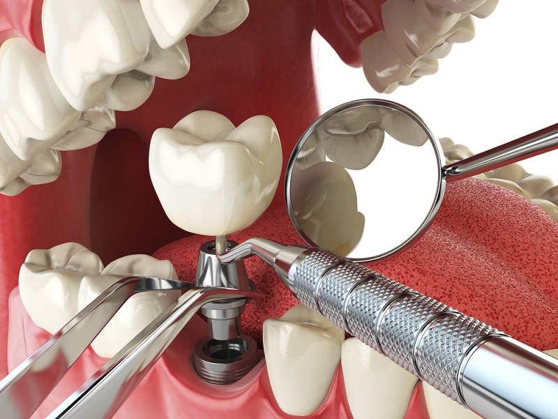 лечение зубов и имплантация в Черкассах и области