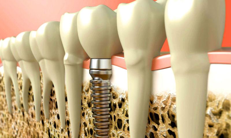 схема импланта в зубном ряду в стоматологии Черкассы