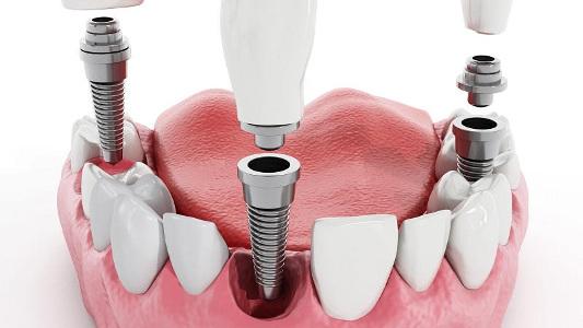 схема имплантации зубов в стоматологии Черкассы фото