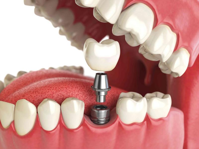лечение зубов в Черкассах