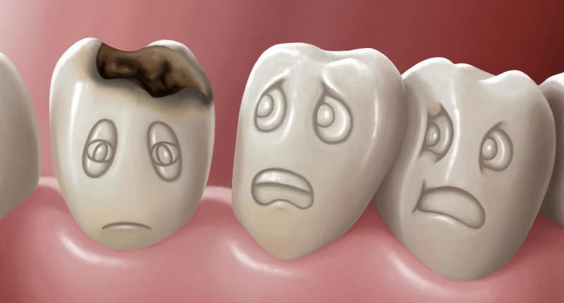 рисунок больного кариесом зуба фото