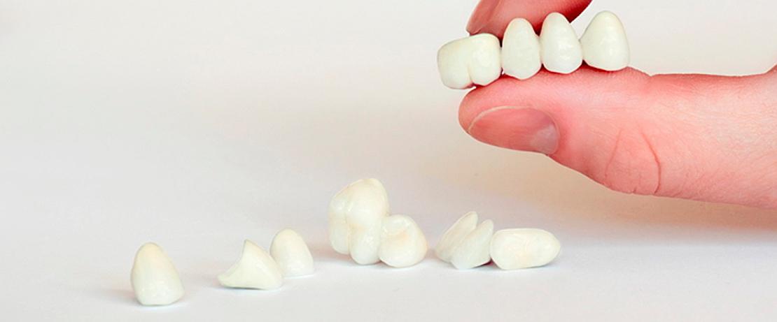коронки для зубов в стоматологической клинике в Черкассах Багита