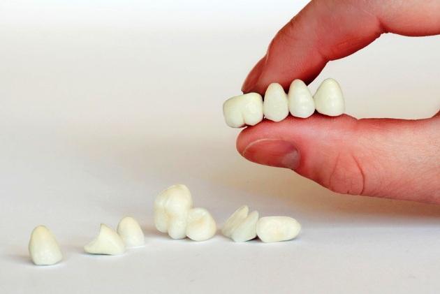 коронки зубов в стоматологии Черкассы фото