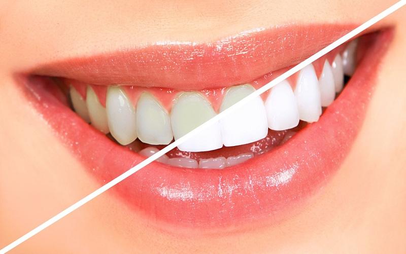 фото зубов до и после отбеливания в стоматологической клинике Багита