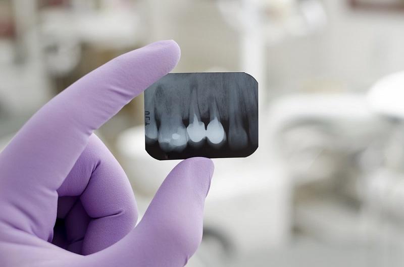 снимок рентгена зубов в стоматологии Черкассы