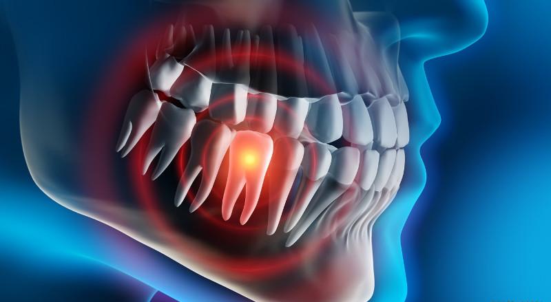 рентген зубов в Черкассах
