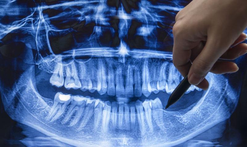 снимок зубов фото