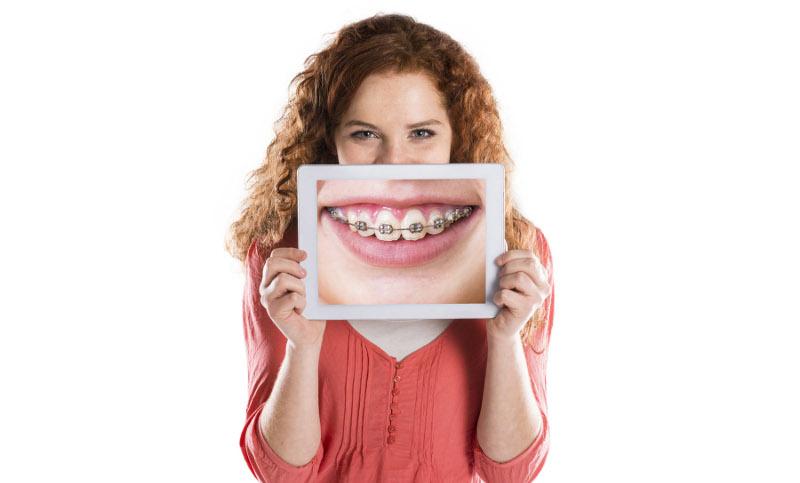 девушка с фото брекетов на зубах
