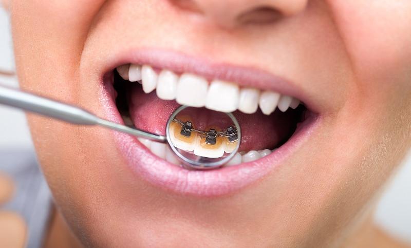 Ортодонтическая пластина на зубах в стоматологической клинике Черкассы фото